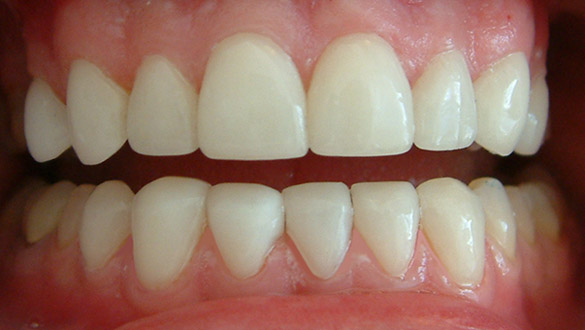 lumineers veneers  after