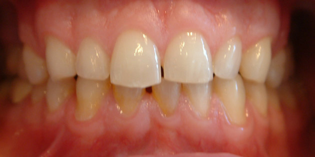 lumineers veneers before
