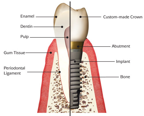 dental implant vs tooth