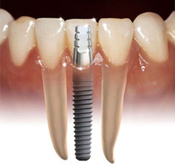 implant for missing tooth